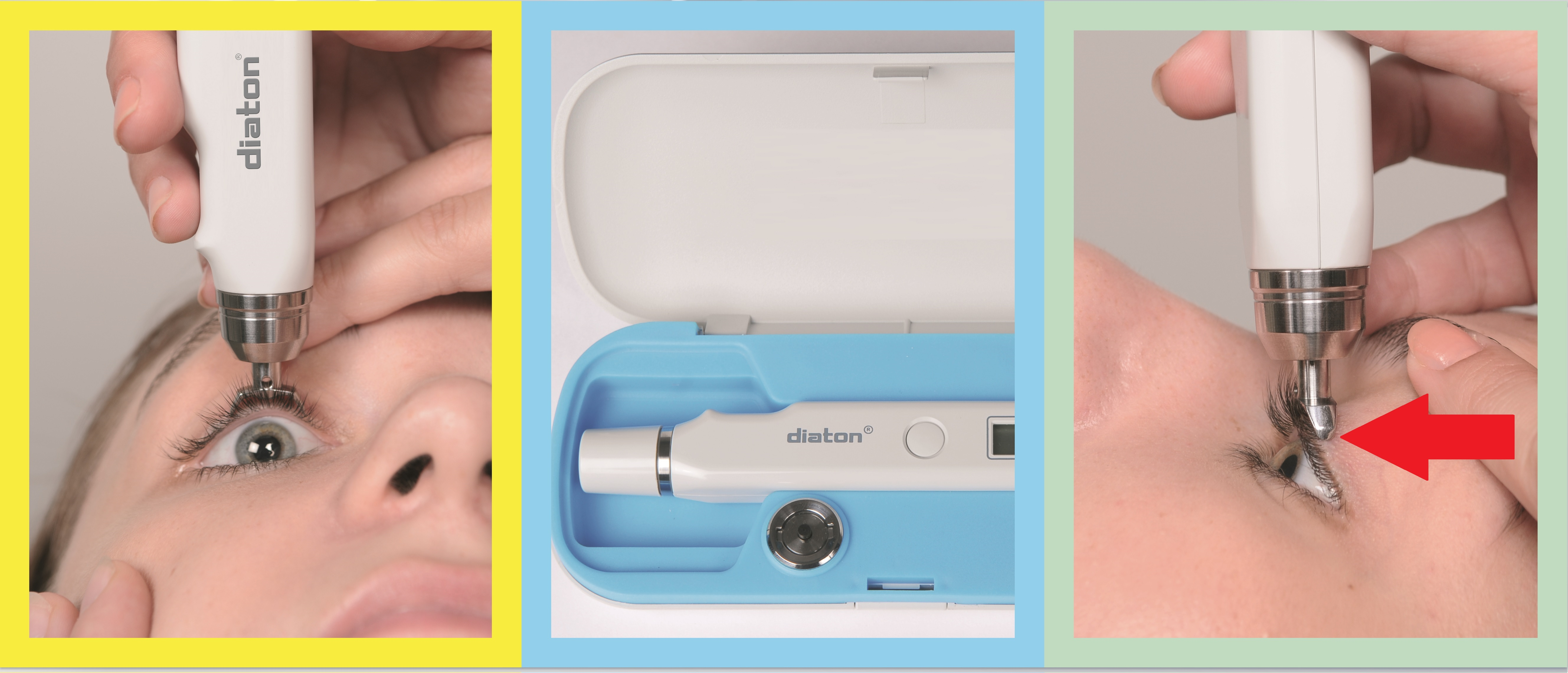 About how to choose a tonometer, and not only
